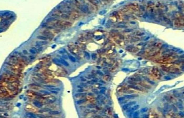 Cáncer: Descubren causa de resistencia a la quimioterapia