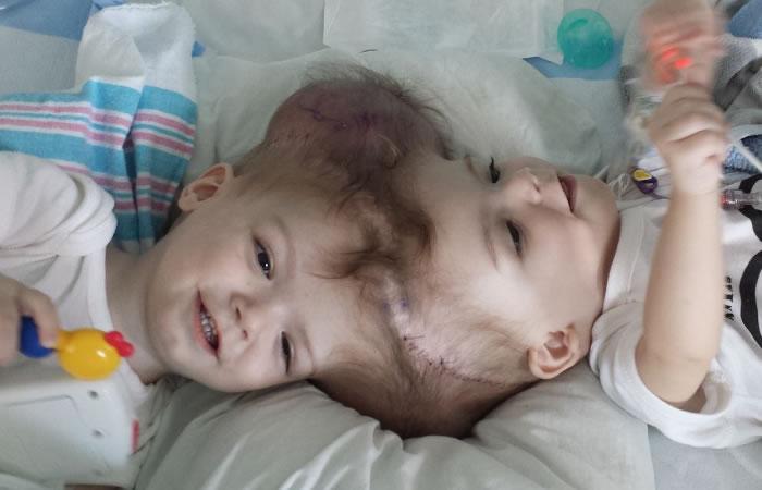Gemelos siameses unidos por la cabeza logran ser separados