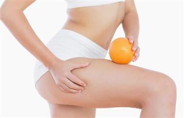 Cinco remedios naturales para eliminar las estrías