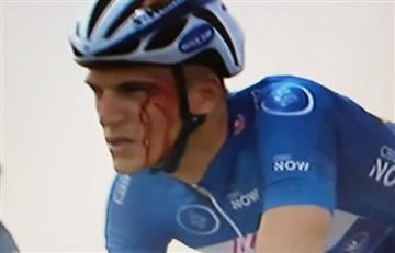 Ciclista del Astana le rompe la cabeza a Marcel Kittel de un golpe y así quedó