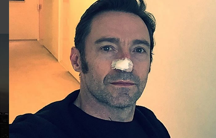 Hugh Jackman recibe nuevo tratamiento por cáncer de piel
