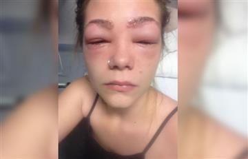 Facebook: Mujer se tiñe las cejas y casi pierde la vista