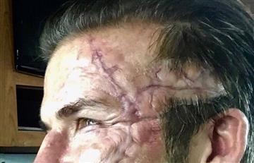 David Beckham ¿Qué le ha sucedido a su rostro?