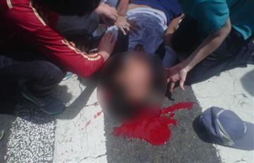 Venezuela: Joven murió tras ser baleado durante protestas