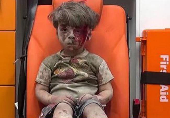 ¿Qué pasó con Omran, el niño sirio que retrató la guerra?