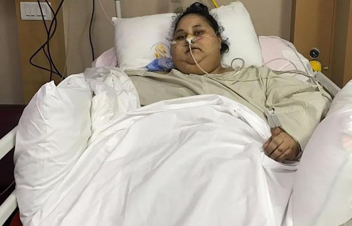 La mujer más obesa del mundo pierde 250 kilos en dos meses