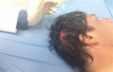 Venezuela: Diputado opositor fue herido en medio de protestas
