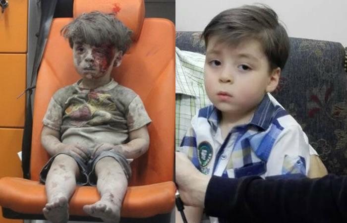Omran: Así está ahora el niño sirio que se convirtió en símbolo del horror en Siria