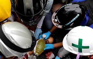 Venezuela: Muere joven de 17 años al estallarle arma artesanal en protesta