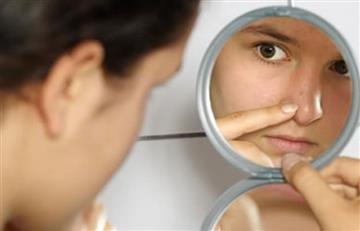 Cinco recomendaciones para tratar el acné en adolescentes y adultos