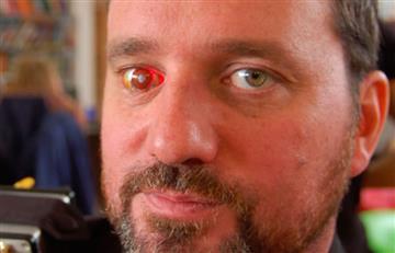 El cineasta que instaló una cámara en el ojo que perdió