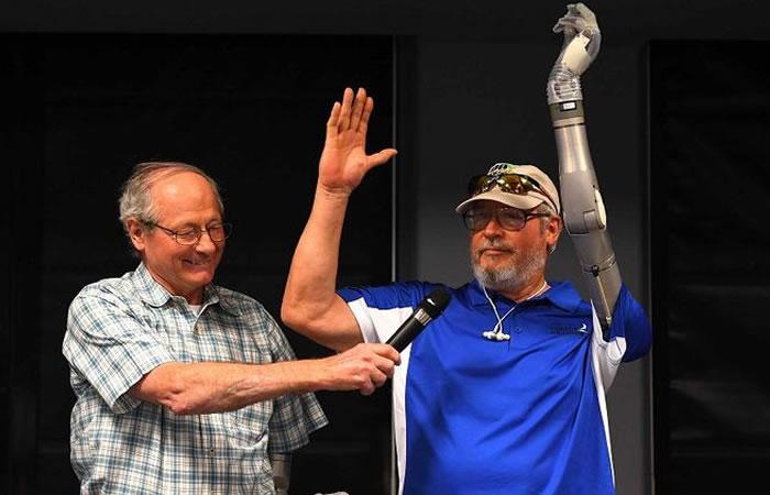 Este es el brazo robótico. Foto: AFP