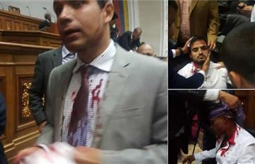Toma de Parlamento venezolano dejó a cinco diputados heridos