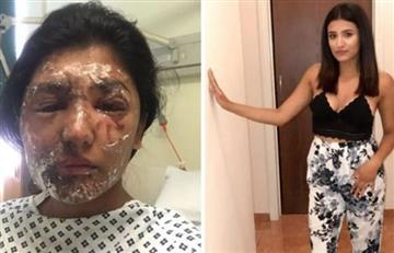 Londres: Ola de ataques callejeros con ácido pone en alerta al país