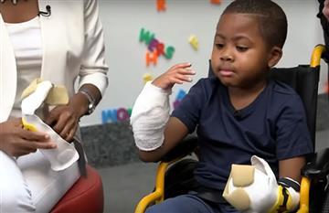 EE.UU: Primer trasplante de manos a un niño en Filadelfia
