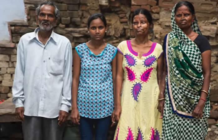 India: Mujer vuleve con el marido que le roció ácido en su cara