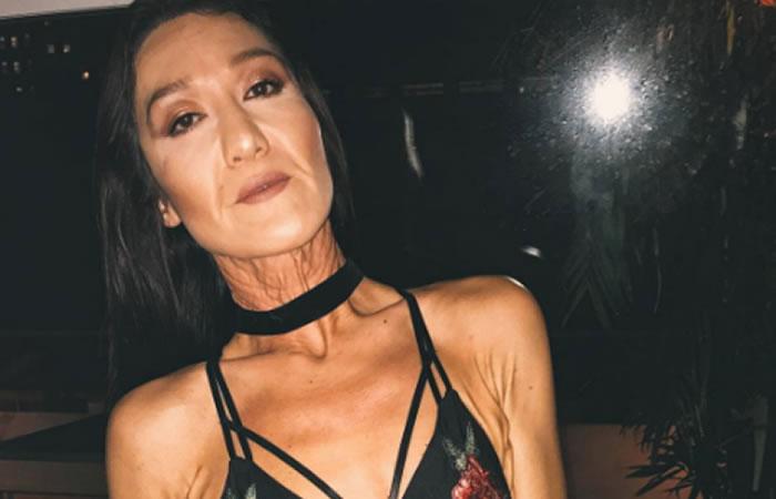 Modelo de 26 años luce como una anciana por extraña enfermedad