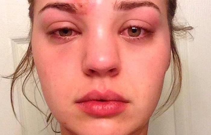 Facebook: Mujer que intentó reventarse una 'espinilla' casi termina muerta