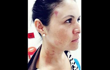 Concejal de Tolima habría golpeado a su expareja