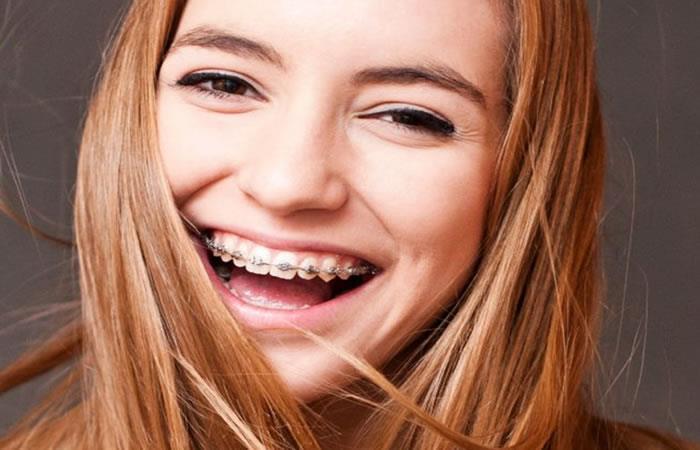 Christian Salazar: ¿Qué debemos tener en cuenta para iniciar una ortodoncia?