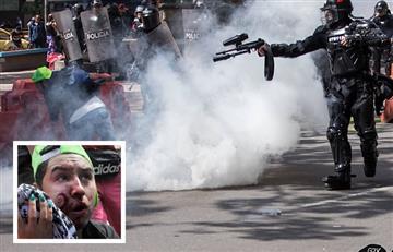 ¿Las balas de goma son tan asesinas cómo las de plomo?
