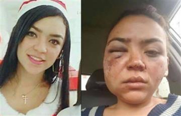 Colombiana es agredida por su pareja tras negarse a tener relaciones