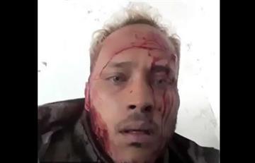 Óscar Pérez, policía que se rebeló contra Maduro, está rodeado
