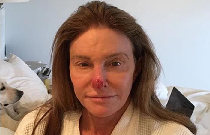 Caitlyn Jenner sufre cáncer de piel y así lo contó