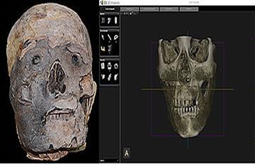 Momias prehispánicas evidencian enfermedades orales de hace 2.000 años