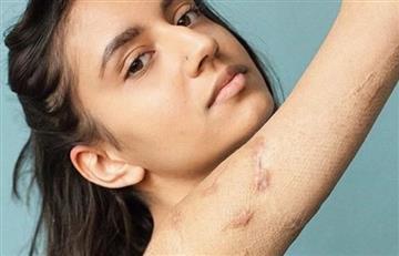 """""""Body positive"""" afronta ahora la belleza de las cicatrices"""