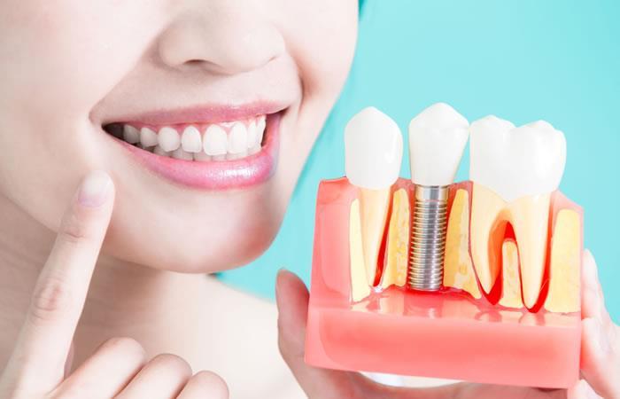 4 cuidados para los implantes dentales