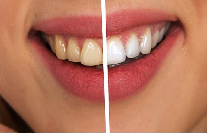 dientes blancos. Foto: Pixabay