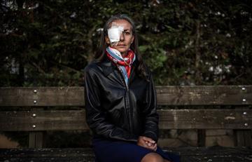 Ryder Cup: Corine Remande demandará al torneo tras perder la visión de su ojo