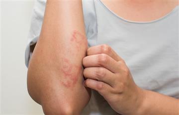 La psoriasis, una enfermedad que afecta la vida social de quienes la padecen