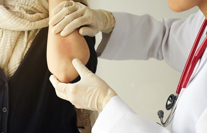 Día Mundial de la Psoriasis: Mitos frecuentes de la enfermedad