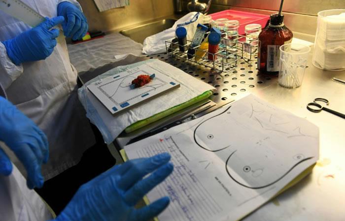 Investigación de la U. Nacional ayudaría a la localización de tumores cancerígenos