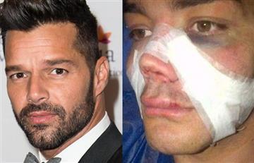 ¿El 'doble de Ricky Martin'?