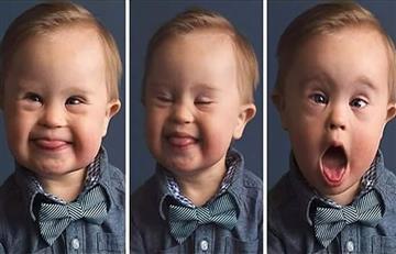 En el Día Mundial del Síndrome de Down, te contamos todo lo que debe saber sobre esta condición