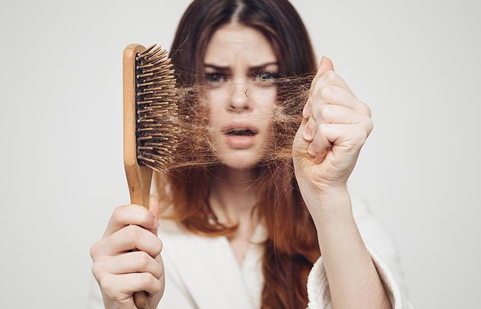 Evita la pérdida de tu cabello. Foto: Shutterstock