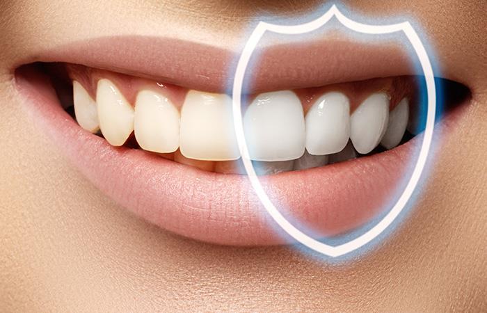 Dientes blancos: Formas de mantener tus dientes blancos