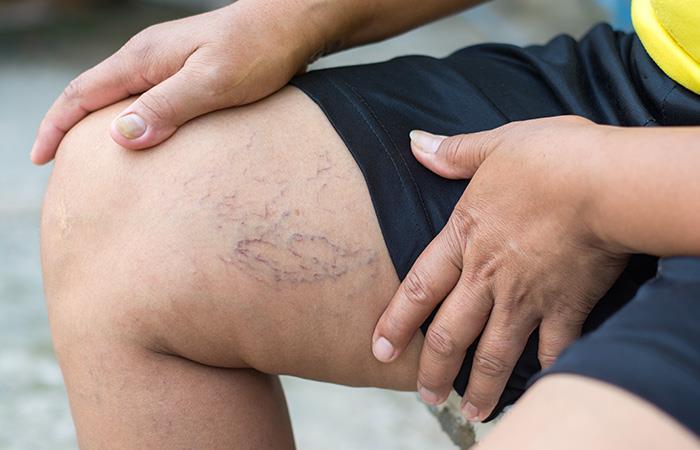 Vena várice: ¿Qué es y cuáles son sus síntomas?