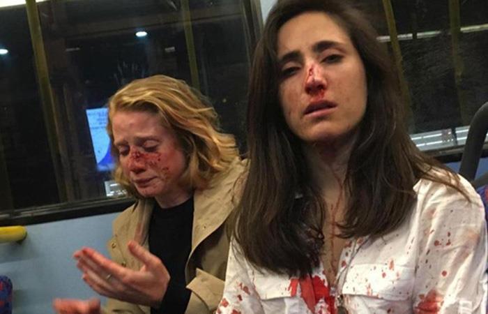 Pareja de lesbianas fue ataca en Londres