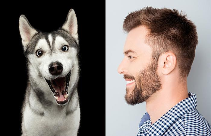 Los hombres tienen más infecciones en la barba que los perros
