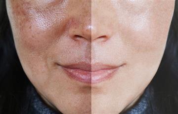 ¡Fácil y rápido! Con estos remedios caseros lograrás cerrar los poros de la piel