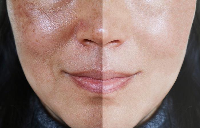 Remedios caseros para cerrar los poros de la piel