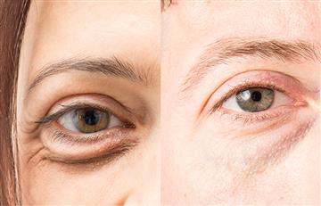 ¡Piel radiante! Con estos tratamientos naturales podrás deshacerte de las molestas ojeras