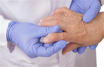 Día internacional del autocuidado: ¿Cómo llevar una vida saludable y tratar la Artritis?