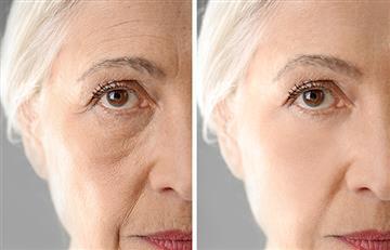¡La solución para lucir joven! La papa Violeta tiene increíbles propiedades antioxidantes