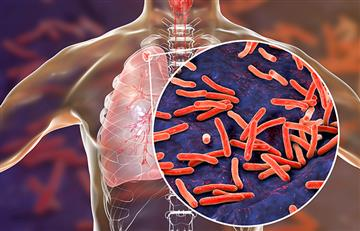 ¿Combatir la tuberculosis? Un gen dio luz para que sea posible
