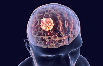¿Es posible eliminar tumores? Su crecimiento podría frenarse con el rotavirus oncolítico